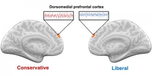 Conservative and liberal brains respond differently to hot-button vocabulary.